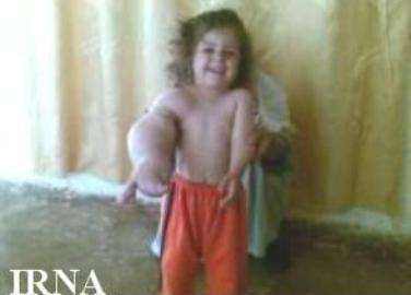 دختر عربی که باعث حیرت پزشکان شده!!