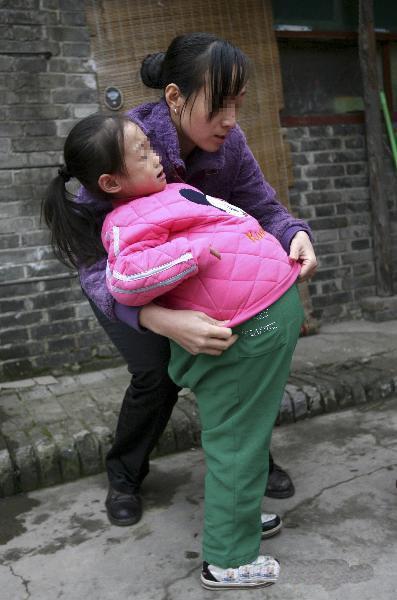 دختری كه شكمش یك متر باد كرده !