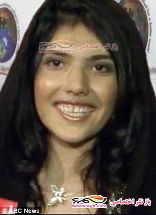 دختری که طالبان بینیاش را بریده بودند!!