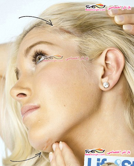 دختری سرشناس در یک روز 10 عمل زیبایی انجام داد!